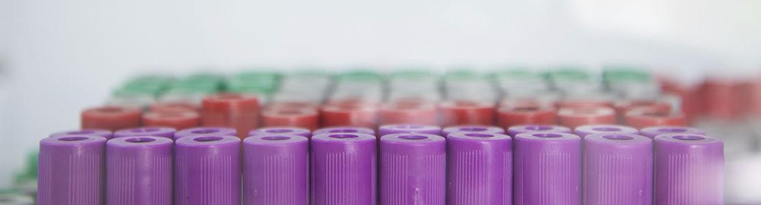 Klinische chemie: interpretatie van laboratoriumresultaten Editie 4